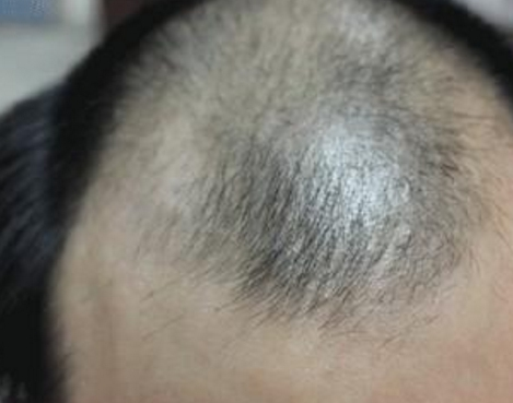 头发种植过程是怎样的