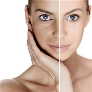 光子嫩肤有哪些功效