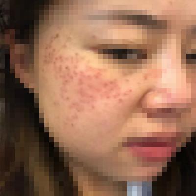 南阳艾美激光祛斑,重新拥有干净皮肤