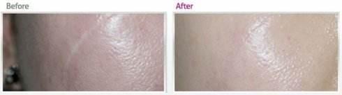 锦州医疗美容疤痕手术治疗的方法