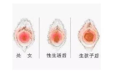 做处女膜修复术