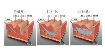 注射除皱手术安全吗?