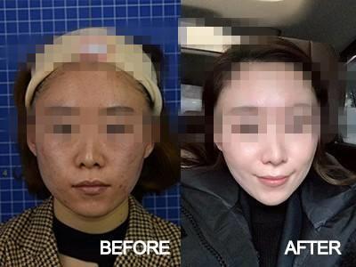 射频美容主要有什么效果呢