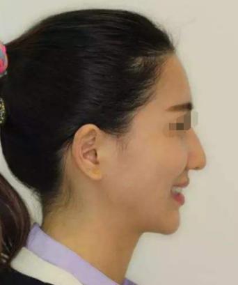 深圳军科牙齿矫正,整齐了牙齿和面部