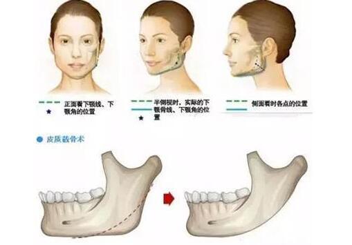 下颌角整形是否会对血管造成一定的伤害