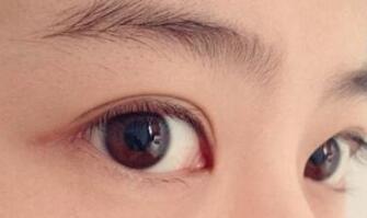 双眼皮手术短期内是不能带隐形眼镜