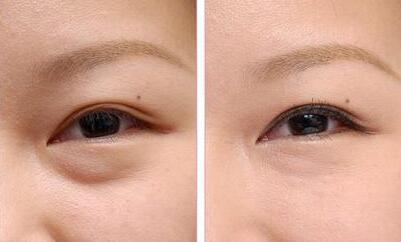 祛眼袋三种方法让你的眼袋说散就散