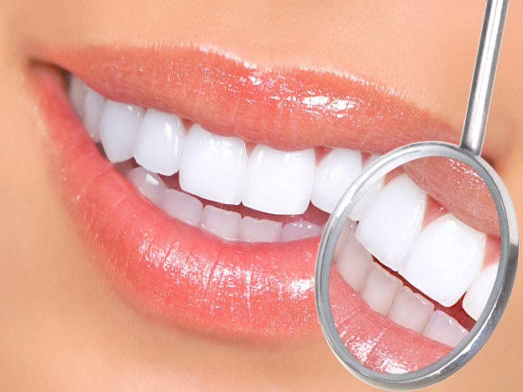 牙齿太黄怎么办