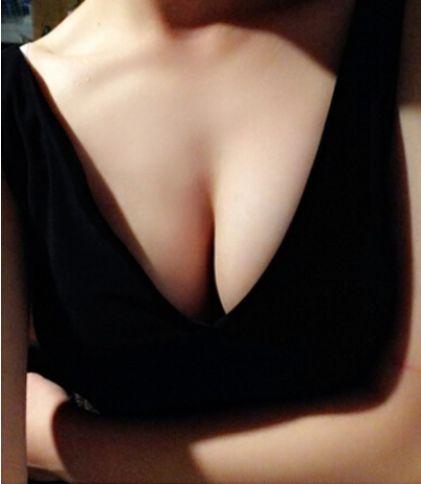 大连李鲁阳假体隆胸后可以哺乳吗