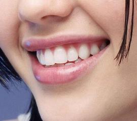 河源曙光牙齿美白,白白的牙齿笑出了声