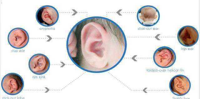 大连李鲁阳副耳整形手术的手术特点