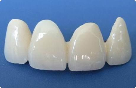 大连李鲁阳烤瓷牙护理方法有以下几点