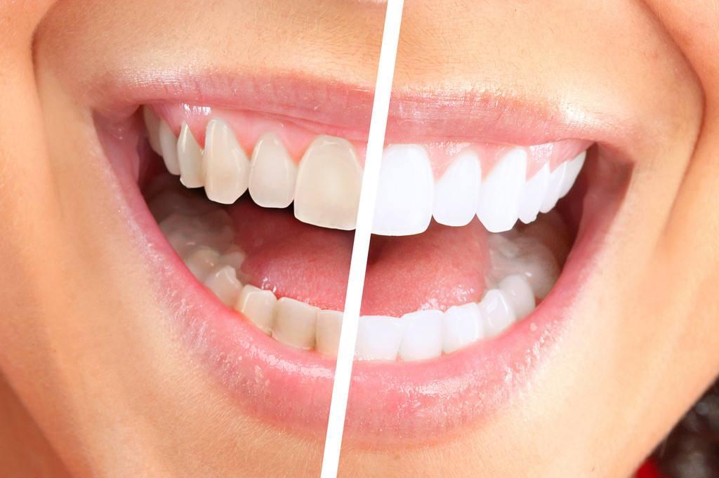 大连李鲁阳牙齿美白优势