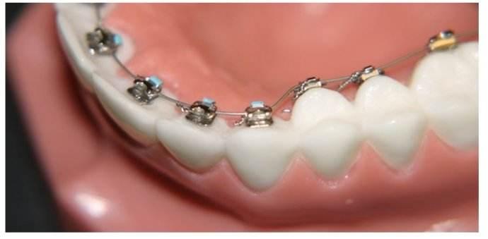 牙齿矫正术后饮食要如何注意