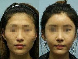 额部填充的手术方法