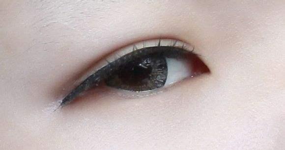锦州博美双眼皮手术会肿吗