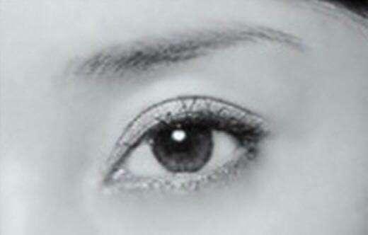 锦州博美双眼皮失败修复手术有风险吗