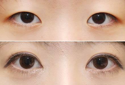 锦州博美眼角开大术主要针对哪些眼睛