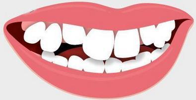 牙齿矫正的方法及饮食