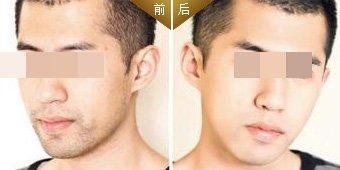 潍坊博雅激光络腮胡脱毛的术前准备很重要