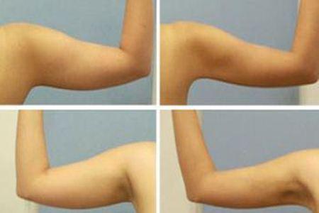 锦州博美手臂吸脂减肥效果怎么样呢