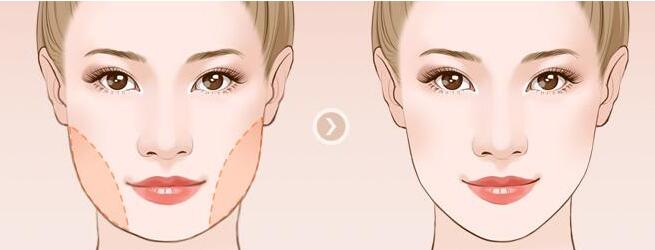 面部吸脂之后表情是会僵硬不