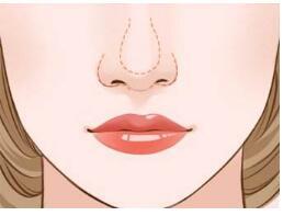 鼻翼整形大概要多少钱?