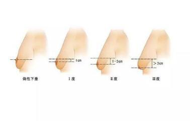 乳房下垂矫正手术以后有哪些必要注意?