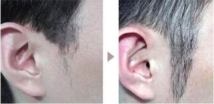 杭州雍禾植发医院植发主任张东宏,让患者获得生活自信