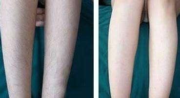 激光小腿脱毛会不会烧伤皮肤