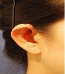 招风耳矫正方法有哪些