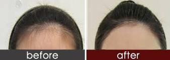 锦州博美激光脱发际线手术过程