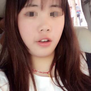武汉珍妮瘦脸针,大脸变小脸不在是梦