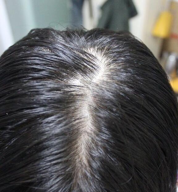 锦州博美头发种植有用吗
