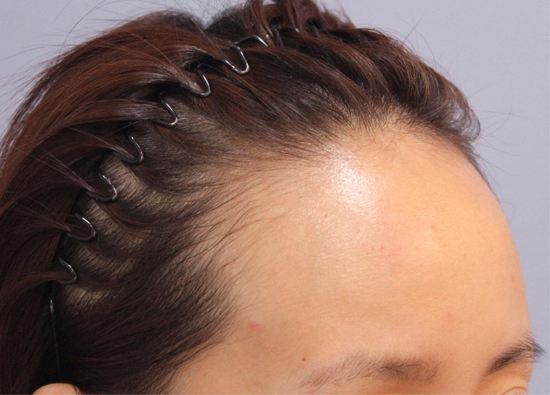 发际脱毛手术过程是怎么样的