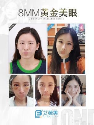 荆万里医生做的8MM黄金美眼术真人案例 改变了我平凡的双眼