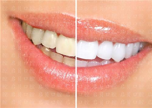 锦州博美激光美白牙齿的原理是什么