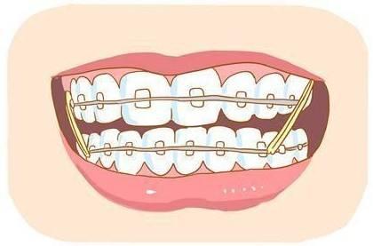 临沂东方美莱坞牙齿矫正器的优劣总览