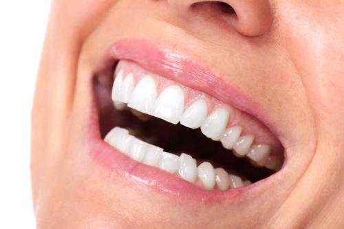 种植牙和传统镶牙的区别