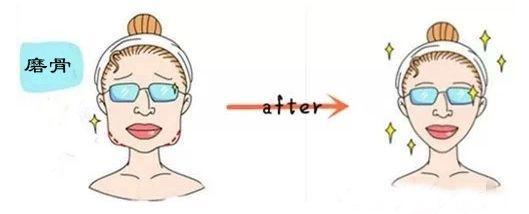 【精品解读】磨骨手术改脸型,选择医生很重要