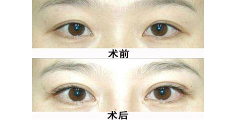 睫毛種植案例,全方位沒死角的翹睫毛