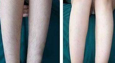 小腿脱毛可以用化妆品吗
