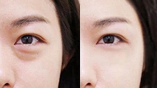 大连达美祛眼袋失败的修复方法