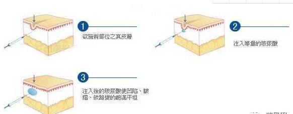 【精品解读】丰太阳穴的重要性及注射技巧