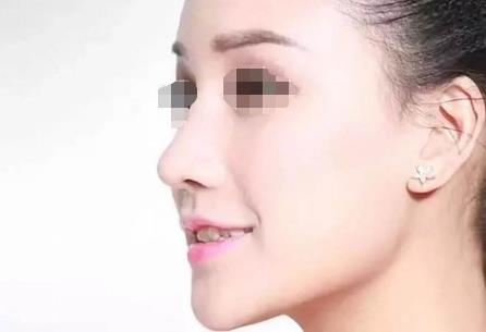 鼻综合术后出现肿胀,增生,变形等问题都是自然的现象