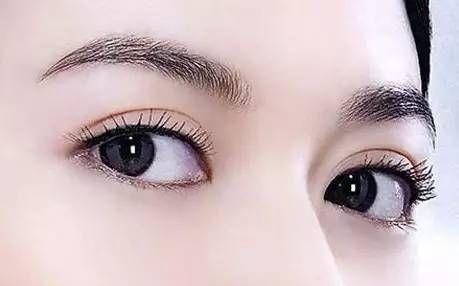锦州富来慕双眼皮是怎么样的