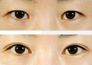 【口碑解读】宝鸡整形医生闫相友的眼部综合术