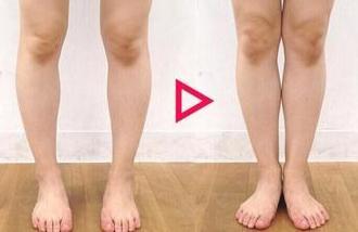 临沂东方美莱坞O型腿的矫正方法有哪些