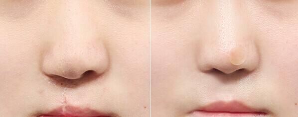 锦州富来幕唇裂手术过程是怎么样的