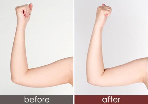 锦州富来幕手臂吸脂瘦手臂优势是什么呢
